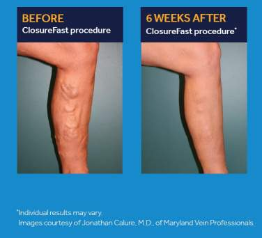 Before image of a leg with veins showing,  and an after image of a the same leg, six weeks after the Closurefast proceedure is used to repair the damaged vein.