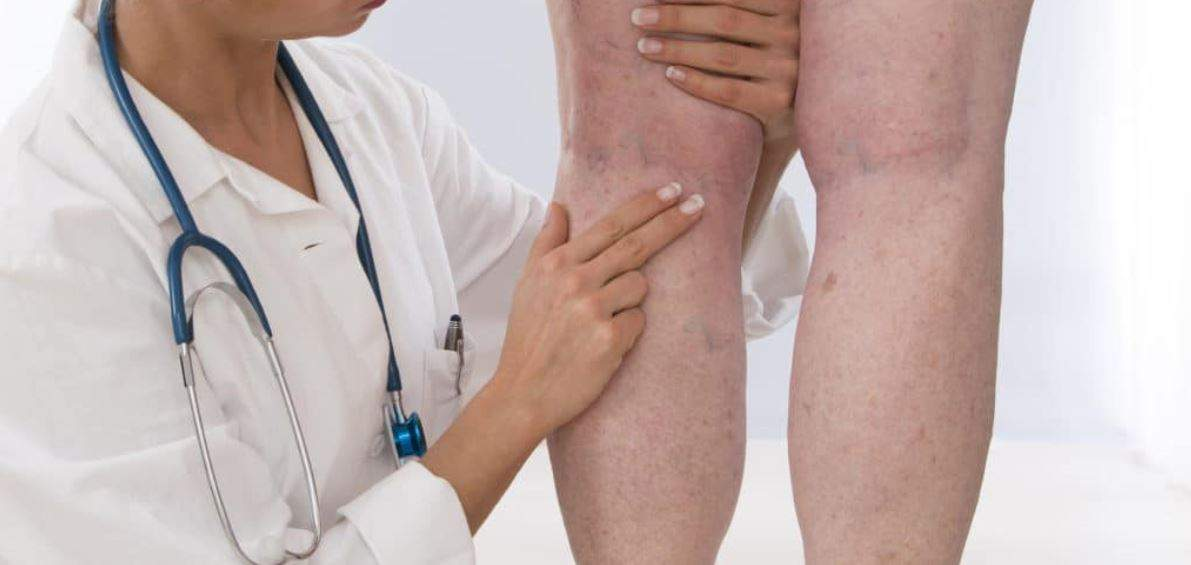 Evaluate legs with doctor